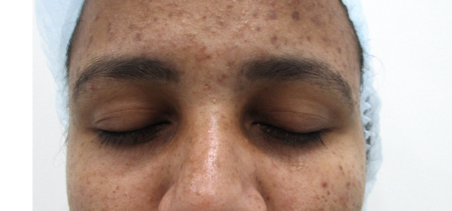 brown spot removal in chennai