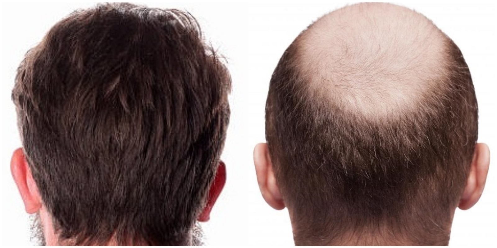 hair transplant treatment in chennai
