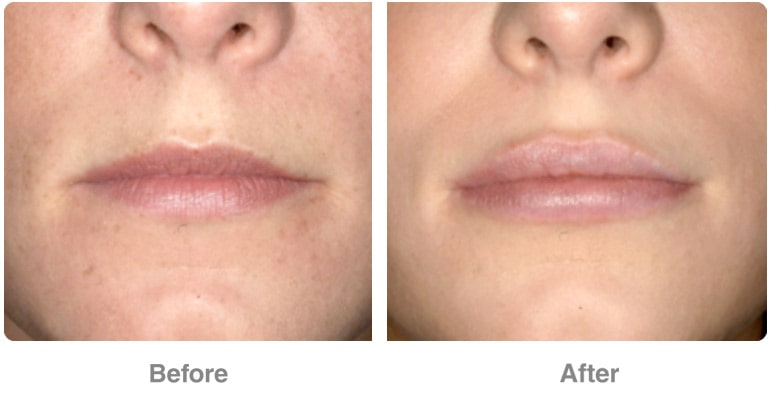 Lip Reduction Cost in Chennai