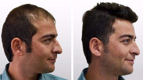 hair loss doctor in chennai