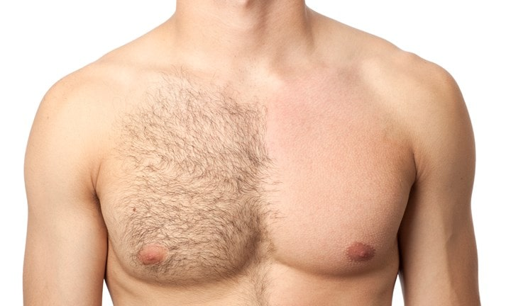 cryo laser hair removal for men