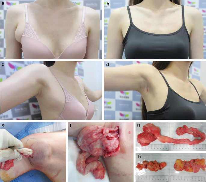 Auxilary Breast in Chennai